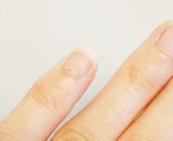 手足口病の後遺症爪甲脱落症